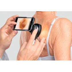 COQUE D'ADAPTATION DERMATOSCOPE NC2 POUR IPHONE